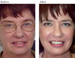 Lemke Facial Surgery Before Facelift Before and After Patient