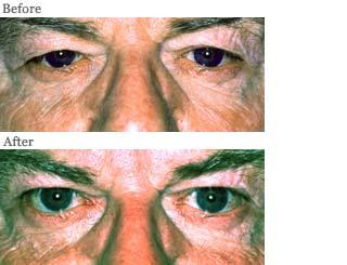 Lemke Facial Surgery Blepharoptosis Procedure Before and After