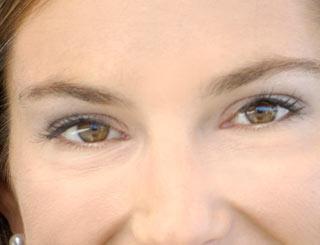 Lemke Facial Surgery Orbital Surgery