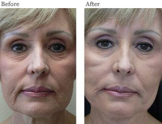Lemke Facial Surgery Thread Lift Before and After