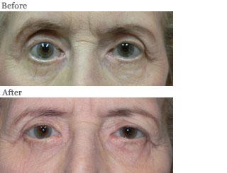Lemke Facial Surgery Thyroid Disease Related Eye Changes Procedure Before and After