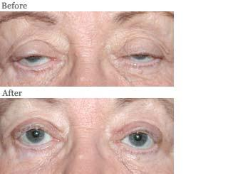 blepharoptosis drooping eyelid repair lemke facial surgery